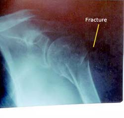 fracture-6